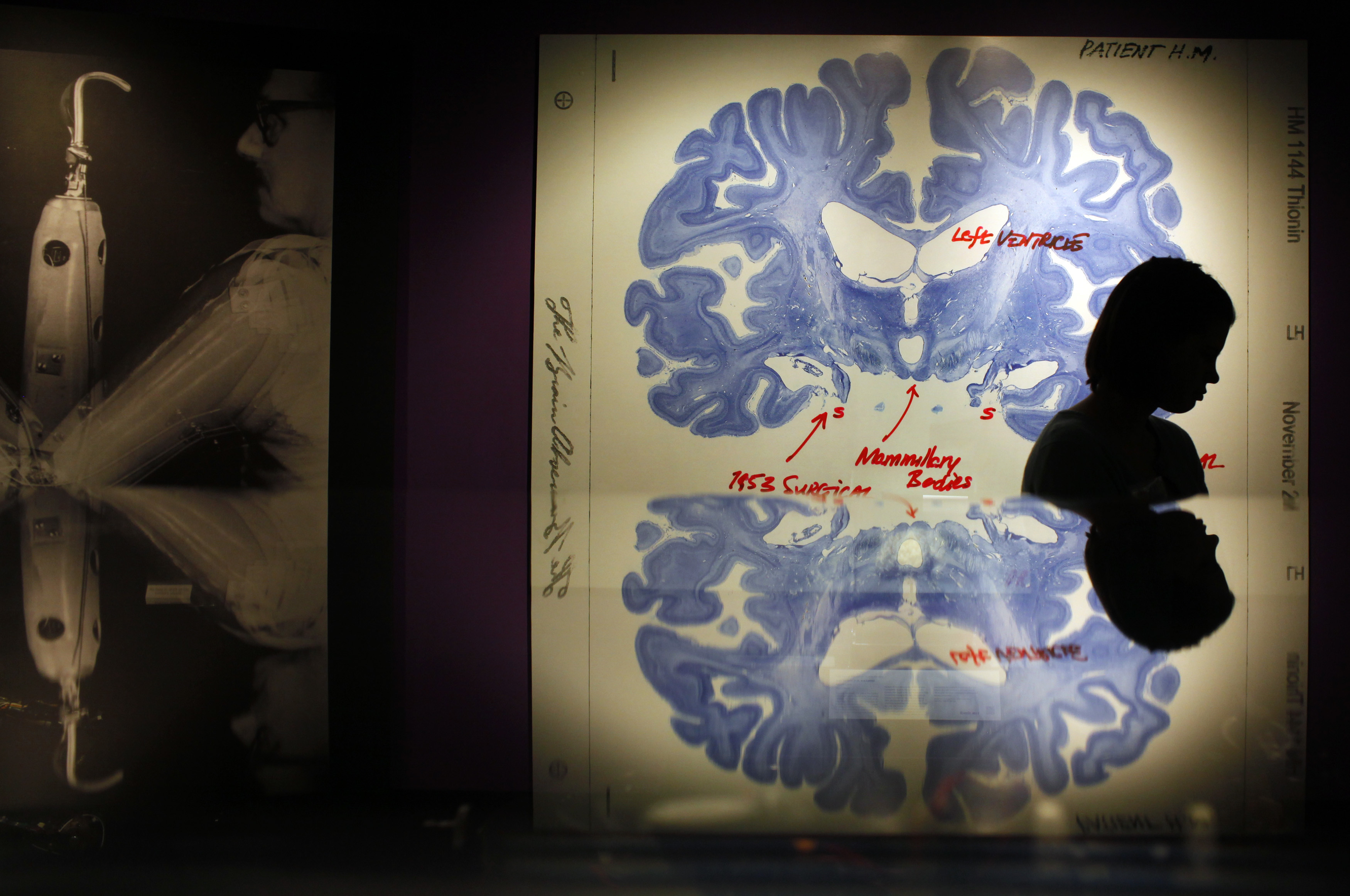 """A woman walks past a display of a brain slice of patient """"H.M."""" at the press preview for the MIT 150 Exhibition at the MIT Museum, celebrating Massachusetts Institute of Technology's 150 year anniversary, in Cambridge, Massachusetts January 7, 2011. Patient H.M. has been extensively studied because of his inability to form long term memories following brain surgery in 1953 for his epilepsy.   REUTERS/Brian Snyder    (UNITED STATES - Tags: SOCIETY EDUCATION BUSINESS ANNIVERSARY) - GM1E71806R501"""