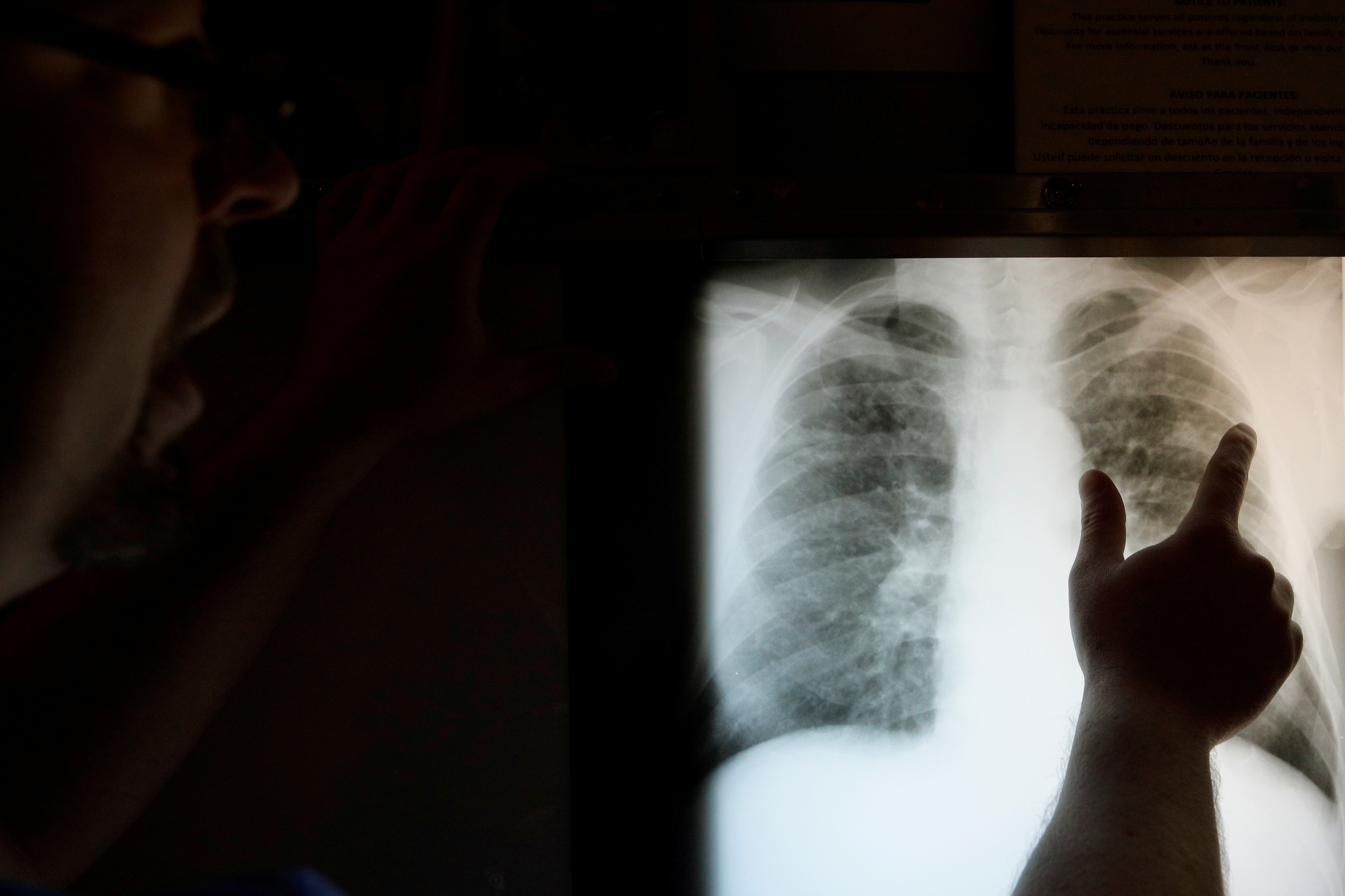 "Radiological technician Mark Davis looks at the chest x-ray of retired coal miner James Marcum, who has complicated black lung disease, at the Stone Mountain Health Services in St. Charles, Virginia, U.S., May 18, 2018. According to Davis, there are no digital x-ray machines in the county, except at a veterinary clinic, so the x-ray film has to be sent to a radiologist to be read, adding weeks to the process of diagnosis. REUTERS/Brian Snyder  SEARCH ""BLACK LUNG"" FOR THIS STORY. SEARCH ""WIDER IMAGE"" FOR ALL STORIES. - RC1BCD144F70"