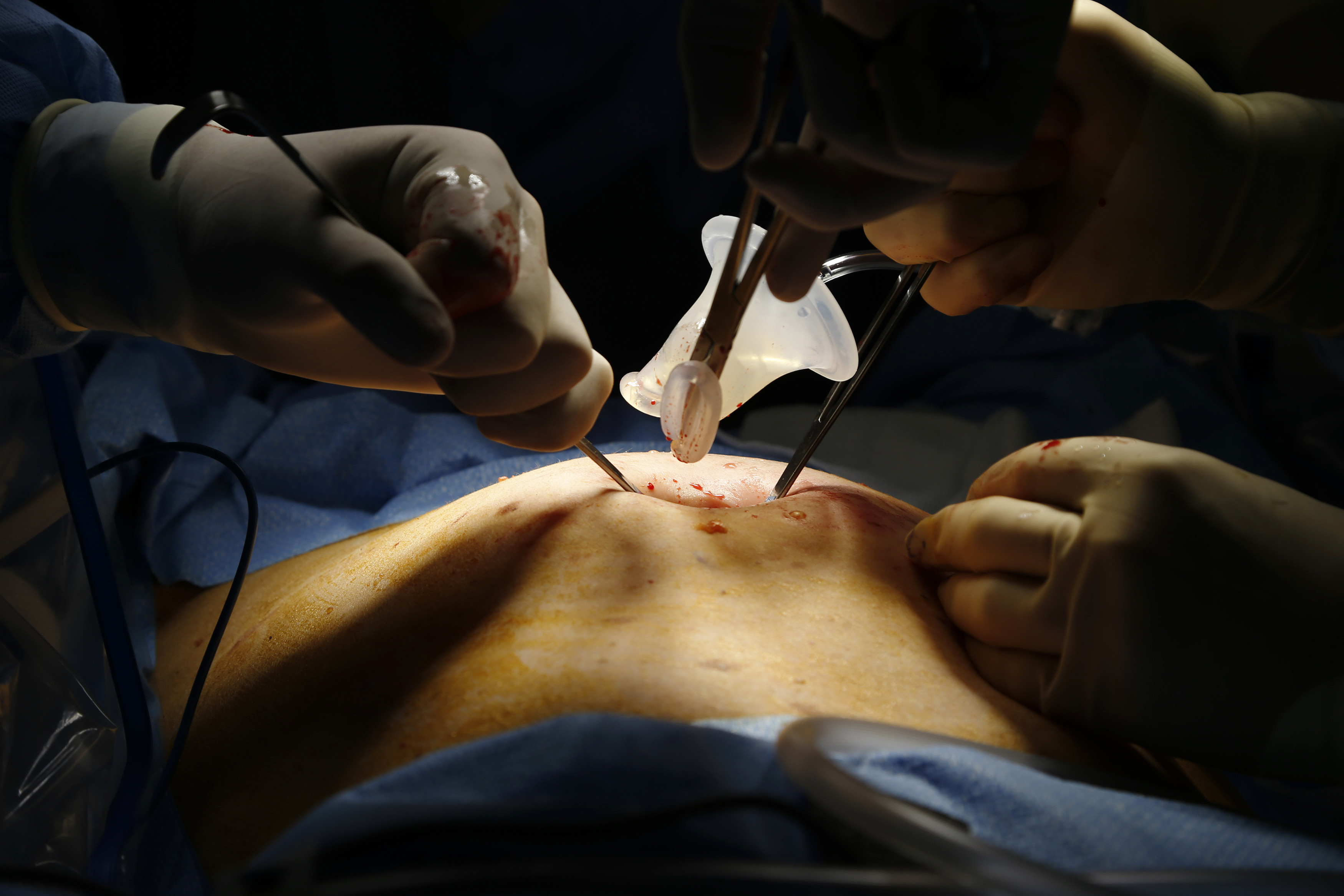 A picture of surgeons operating.