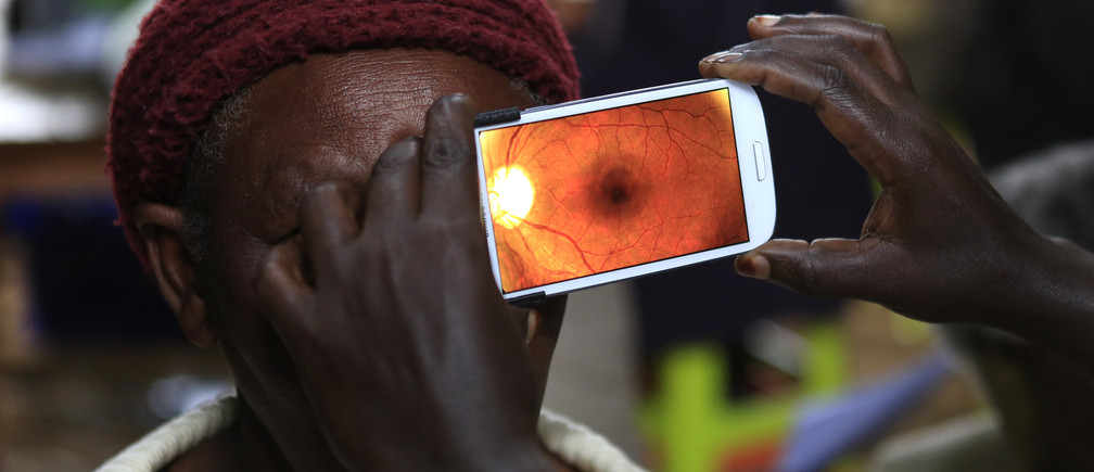 "A woman undergoes an eye examination using of a smartphone at a temporary clinic by International Centre for Eye Health at Olenguruone in the Mau Summit 350km (217 miles) west of Kenya's capital Nairobi, October 29, 2013. The organisation is running clinics for 5000 eye patients using a new application ""Peek Vision"" that enables doctors to give patients a full eye examination using smartphones. The phone diagnoses and conducts cataract scans, basic eye tests, and uses the phone's flash to illuminate the back of the eye for signs of disease. It also sends all recorded data of a patient along with their location to a doctor for analysis. REUTERS/Noor Khamis (KENYA - Tags: HEALTH SOCIETY SCIENCE TECHNOLOGY) - RTX14SX6"