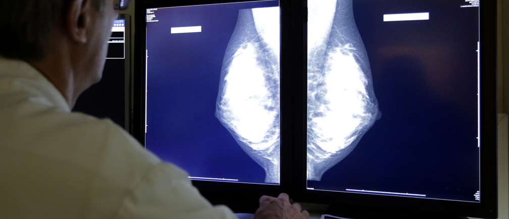 A radiologist examines breast X-rays after a regular cancer prevention medical check-up at a radiology center in Nice, November 5, 2012.      REUTERS/Eric Gaillard (FRANCE - Tags: HEALTH SCIENCE TECHNOLOGY) - PM1E8B5158B01
