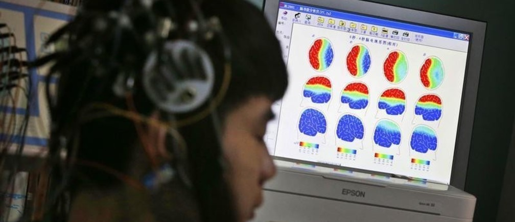 A boy who was addicted to the internet, has his brain scanned for research purposes at Daxing Internet Addiction Treatment Center in Beijing February 22, 2014. As growing numbers of young people in China immerse themselves in the cyber world, spending hours playing games online, worried parents are increasingly turning to boot camps to crush addiction. Military-style boot camps, designed to wean young people off their addiction to the internet, number as many as 250 in China alone. Picture taken February 22, 2014. REUTERS/Kim Kyung-Hoon (CHINA - Tags: SOCIETY)ATTENTION EDITORS - PICTURE 20 OF 33 FOR PACKAGE 'CURING CHINA'S INTERNET ADDICTS'TO FIND ALL IMAGES SEARCH 'INTERNET BOOT CAMP' - LM2EA6O18Z701