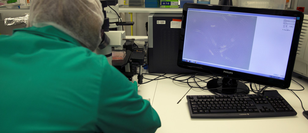 A scientist uses a microscope to check samples of human skin obtained from a 3D bioprinter prototype at Carlos III University in Getafe, Spain, February 2, 2017. Picture taken February 2, 2017. REUTERS/Sergio Perez - RTX3135R