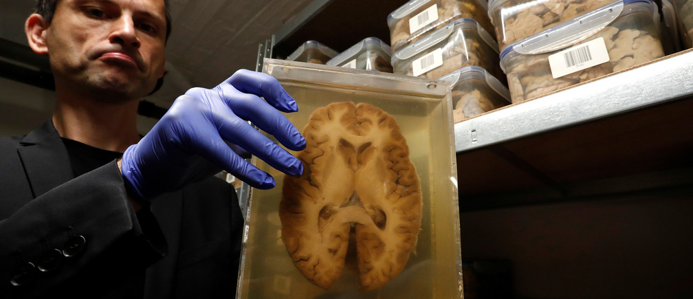 Belgian researcher Manuel Morrens holds a container filled with a slide of a human brain, part of a collection of more than 3,000 brains that could provide insight into psychiatric diseases, at the psychiatric hospital in Duffel, Belgium, July 19, 2017.  REUTERS/Yves Herman - RC1CAD36E300