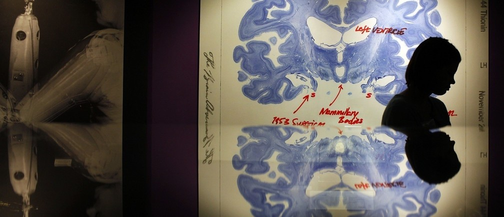 "A woman walks past a display of a brain slice of patient ""H.M."" at the press preview for the MIT 150 Exhibition at the MIT Museum, celebrating Massachusetts Institute of Technology's 150 year anniversary, in Cambridge, Massachusetts January 7, 2011. Patient H.M. has been extensively studied because of his inability to form long term memories following brain surgery in 1953 for his epilepsy.   REUTERS/Brian Snyder    (UNITED STATES - Tags: SOCIETY EDUCATION BUSINESS ANNIVERSARY) - RTXWB86"