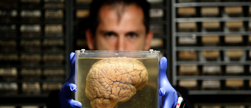 Researcher Manuel Morrens holds a container filled with a human brain, part of a collection of more than 3,000 brains that could provide insight into psychiatric diseases, at the psychiatric hospital in Duffel, Belgium, July 19, 2017.    REUTERS/Yves Herman - RC15811AC830