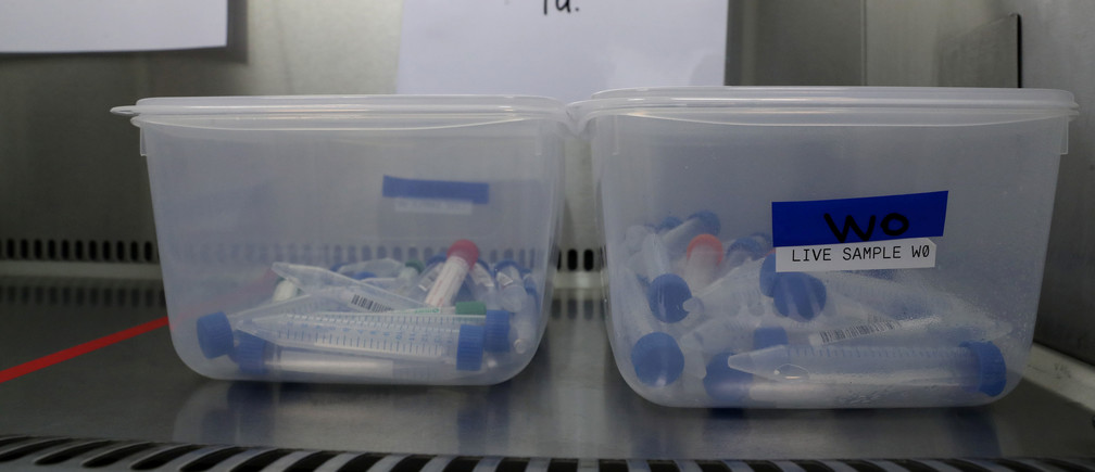 Samples sit in a container at the new COVID-19 testing lab at Queen Elizabeth University Hospital, amid the coronavirus disease epidemic in Glasgow, Britain April 22, 2020. Andrew Milligan/Pool via REUTERS - RC2Q9G9KI60D