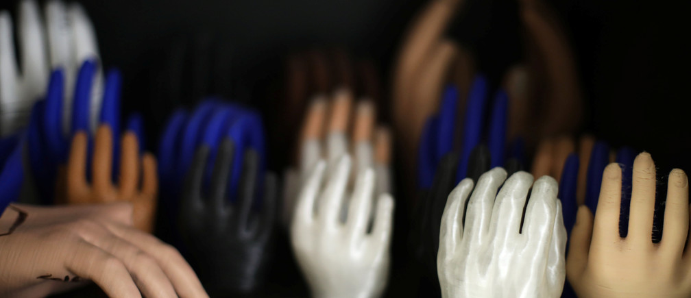 3D-printed prosthetic hands are pictured at the MSF-run hospital in Amman, Jordan January 28, 2019. Picture taken January 28, 2019. REUTERS/Muhammad Hamed - RC19798300D0