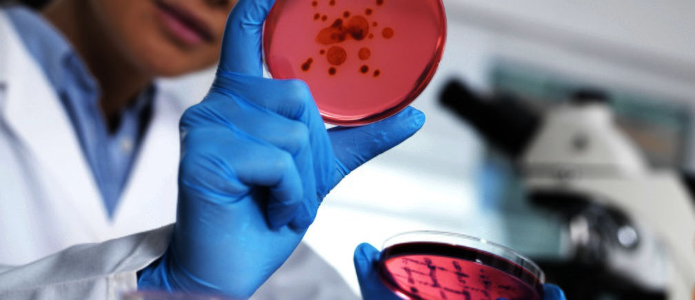 MODEL RELEASED. Scientist examining microbiological cultures in a petri dish.