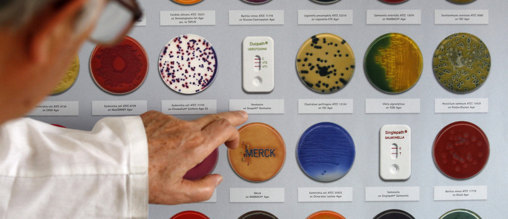 A graph showing examples of a bacterial growth mediums including a few of Escherichia coli (E.coli) bacterias displayed in a microbiological laboratory at the Bulgarian Food Safety Agency in Sofia June 9, 2011.