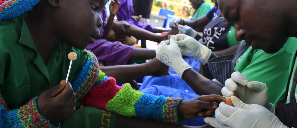 A schoolgirl sits with her schoolmates and sucks a lollipop to soothe her as her foot is examined to remove jiggers from it in Kalebera village, Jinja district, eastern Uganda August 6, 2015.