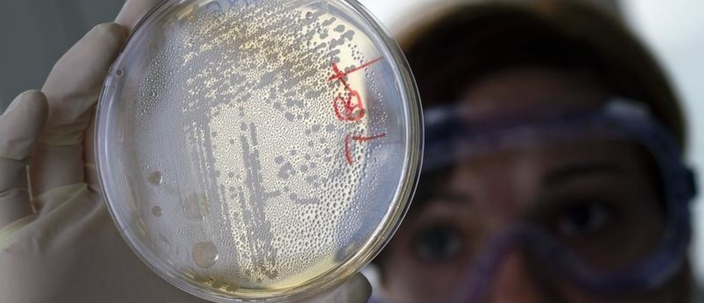 A laboratory worker looks for strains of E.coli bacteria in vegetable cells placed in a petri dish, in La Mojonera near Almeria in southeastern Spain June 2, 2011. A deadly outbreak of E.coli centred in Germany and spreading across Europe is caused by a dangerous new strain, Chinese scientists who analyzed the bacteria said. The scientists said the outbreak, which has killed 17 and made more than 1,500 others ill in at least 10 European countries and is thought to come from vegetables, carried genes making it resistant to several classes of antibiotics. REUTERS/Francisco Bonilla (SPAIN - Tags: HEALTH BUSINESS AGRICULTURE SCI TECH) - GM1E7621PAA01