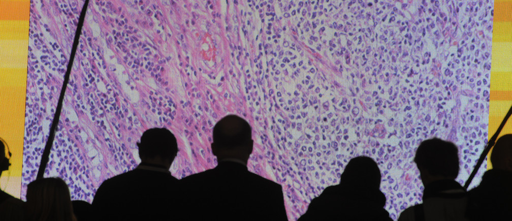 Cancer cells are seen on a large screen connected to a microscope at the CeBit computer fair in Hanover, March, 6, 2012. The biggest fair of its kind will run to March 10, 2012.