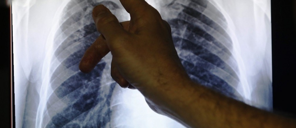 A Doctor points to an x-ray showing a pair of lungs infected with TB.