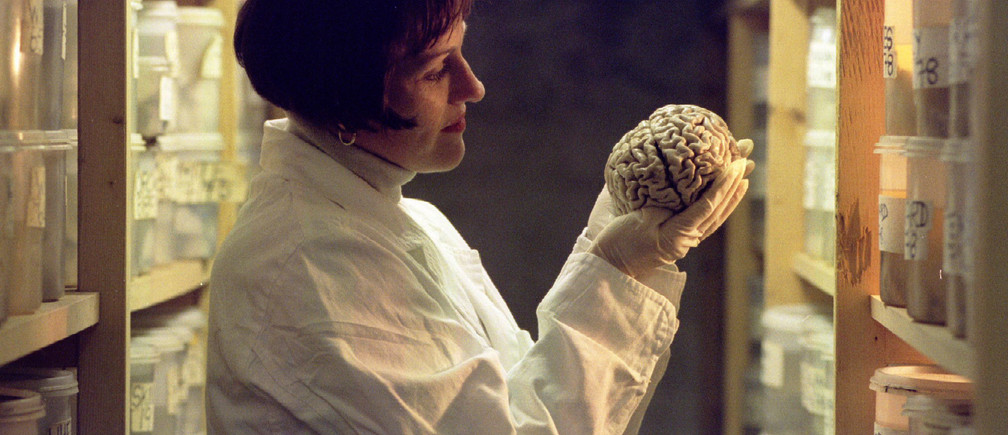 A laboratory worker holds a human brain, one from an archive of 8,000 stored in a World War II air raid shelter at Wickford, Essex. The Corsellis Collection of human brains and brain tissue, named after founder Professor Nick Corsellis, is being opened up to scientists and academics - PBEAHUMZYDH