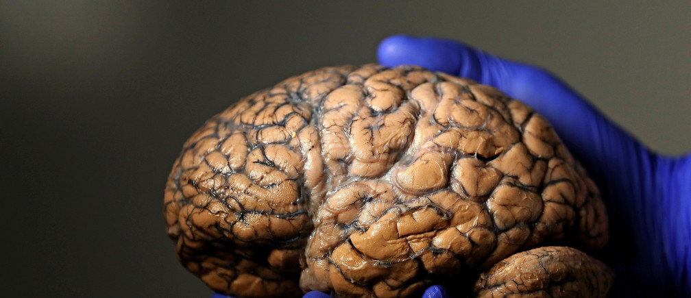 Belgian researcher Jeroen Schuermans holds a human brain, part of a collection of more than 3,000 brains that could provide insight into psychiatric diseases, at the psychiatric hospital in Duffel, Belgium, July 19, 2017.    REUTERS/Yves Herman - RC187F247E60