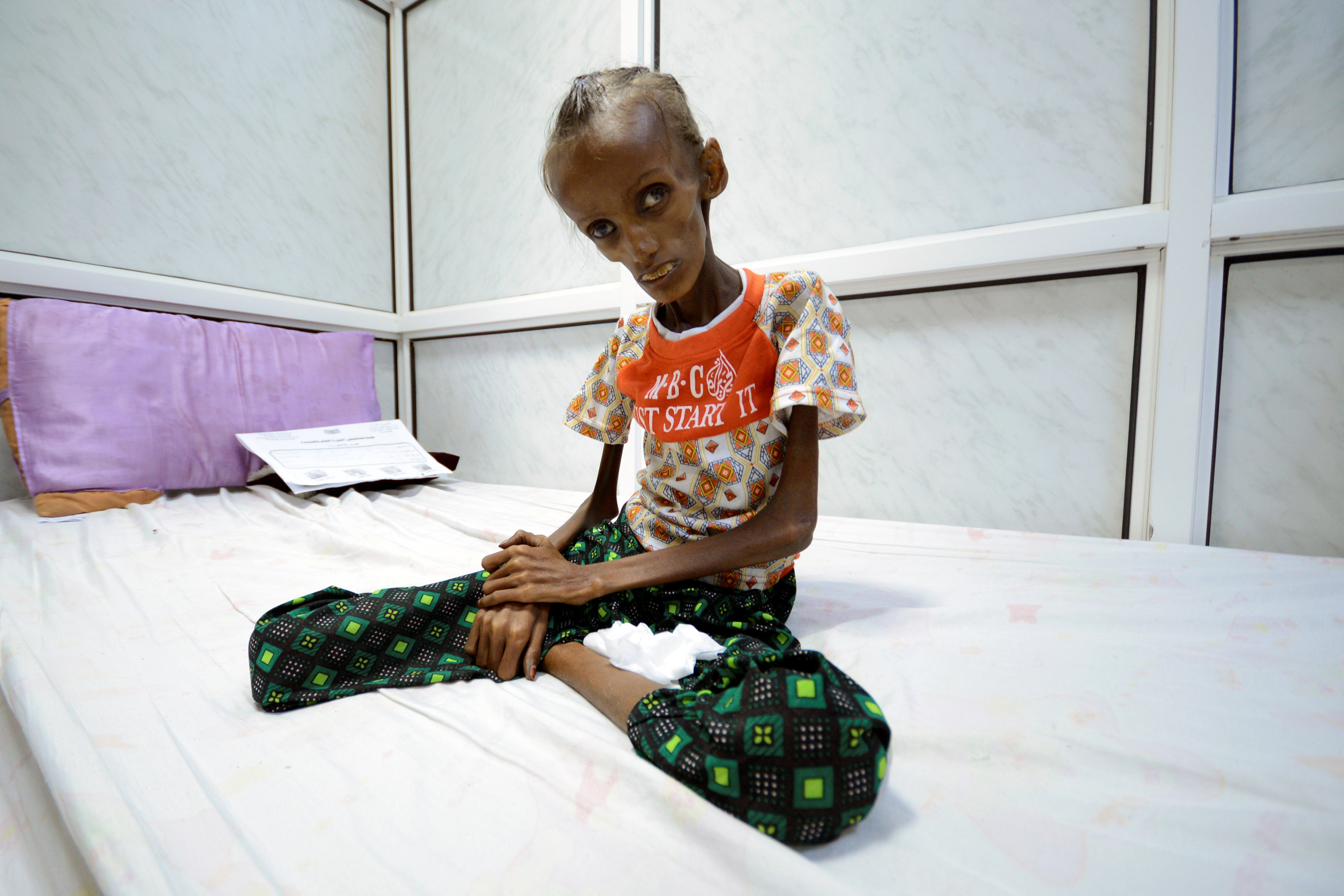 Saida Ahmad Baghili, 18, who is affected by severe acute malnutrition, sits on a bed at the al-Thawra hospital in the Red Sea port city of Houdieda, Yemen October 24, 2016. REUTERS/Abduljabbar Zeyad TPX IMAGES OF THE DAY - RTX2Q6RX