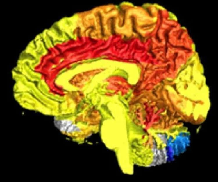 Women Have More Active Brains Than Men According To Science World