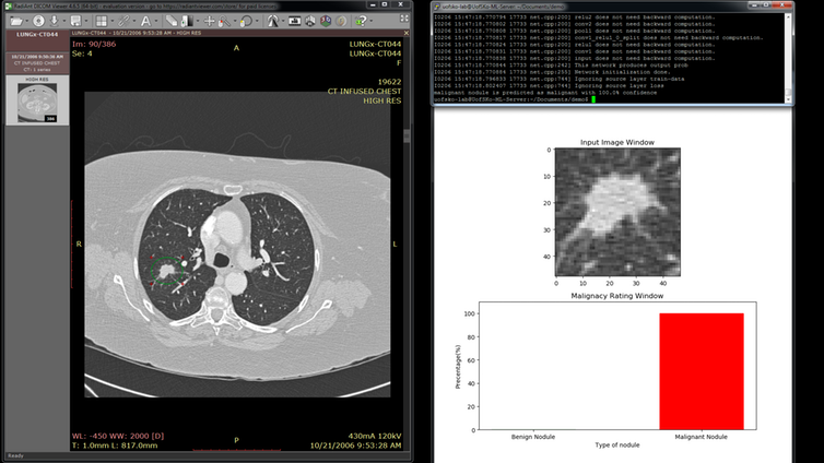 A screenshot of the lung cancer detection software.