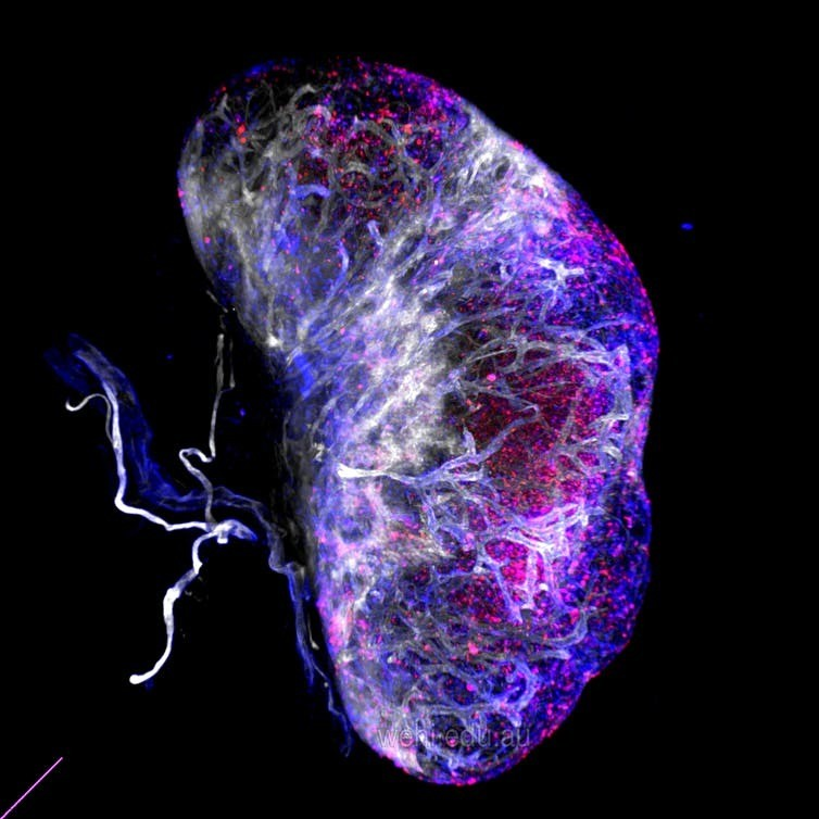 This 3D image of a lymph node shows the cells that produce chemokines in red and blue.