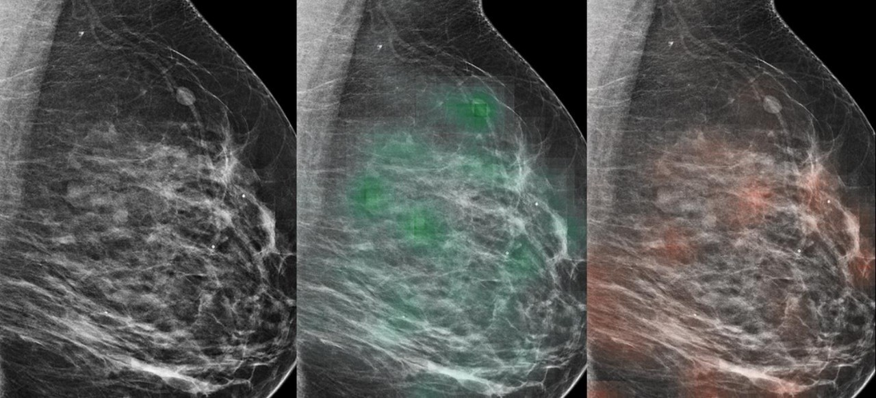 The AI tool learned to predict which lesions were likely malignant (red heat map) or likely benign (green heat map), with potential to aid radiologists in the diagnosis of breast cancer.