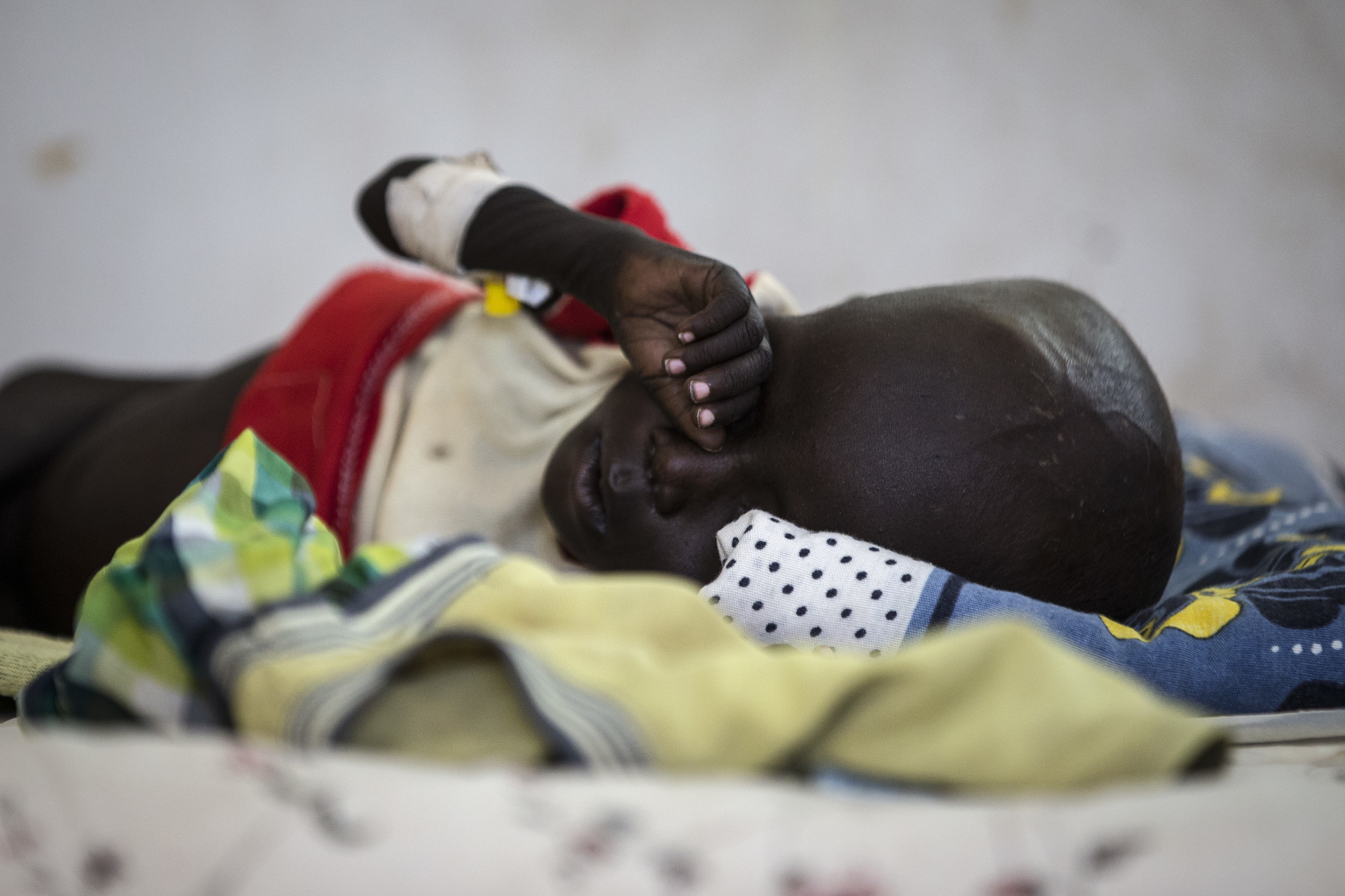A sick child lies in a bed in a UNICEF supported hospital in Juba, South Sudan, January 24, 2017. In 2017 in South Sudan, ongoing insecurity, combined with an economic crisis that has pushed inflation above 800 percent, has created widespread food insecurity with malnutrition among children having reached emergency levels in most parts of the country. In 2016, UNICEF and partners admitted 184,000 children for treatment of severe malnutrition. That is 50 percent higher than the number treated in 2015 and an increase of 135 percent over 2014.In February 2017, war and a collapsing economy have left some 100,000 people facing starvation in parts of South Sudan where famine was declared 20 February, three UN agencies warned. A further 1 million people are classified as being on the brink of famine. The Food and Agriculture Organization of the United Nations (FAO), the United Nations Children's Fund (UNICEF) and the World Food Programme (WFP) also warned that urgent action is needed to prevent more people from dying of hunger. If sustained and adequate assistance is delivered urgently, the hunger situation can be improved in the coming months and further suffering mitigated. The total number of food insecure people is expected to rise to 5.5 million at the height of the lean season in July if nothing is done to curb the severity and spread of the food crisis. According to the Integrated Food Security Phase Classification (IPC) update released 20 February by the government, the three agencies and other humanitarian partners, 4.9 million people – more than 40 percent of South Sudan's population – are in need of urgent food, agriculture and nutrition assistance. Unimpeded humanitarian access to everyone facing famine, or at risk of famine, is urgently needed to reverse the escalating catastrophe, the UN agencies urged. Further spread of famine can only be prevented if humanitarian assistance is scaled up and reaches the most vulnerable. Famine is currently a