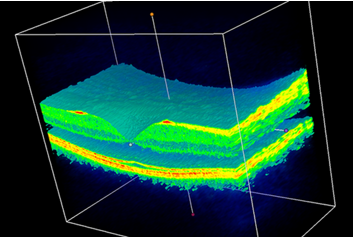 An Optical Coherence Tomography (OCT) scan of the retina of one of the DeepMind Health team