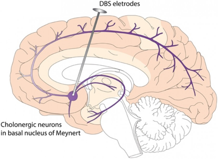 Schéma de stimulation cérébrale profonde