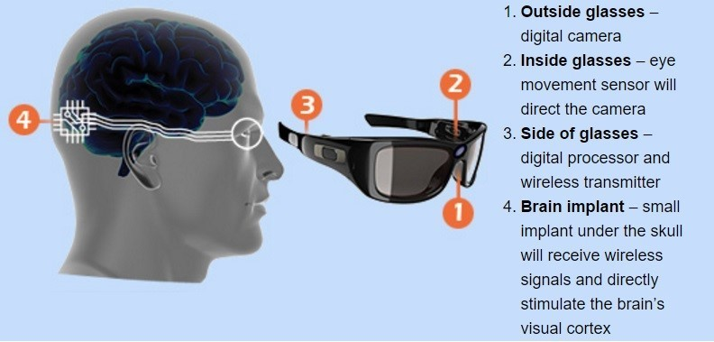 Bionic eyes, said to help 85% of clinically blind people.