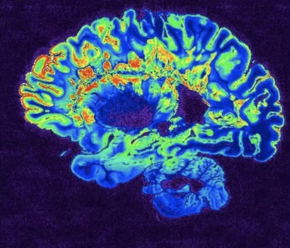 Una imagen del cerebro de un paciente de COVID-19 después de una resonancia magnética.