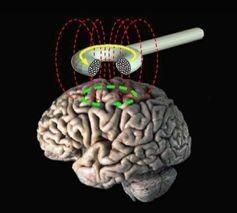 Transcranial magentic stimulation