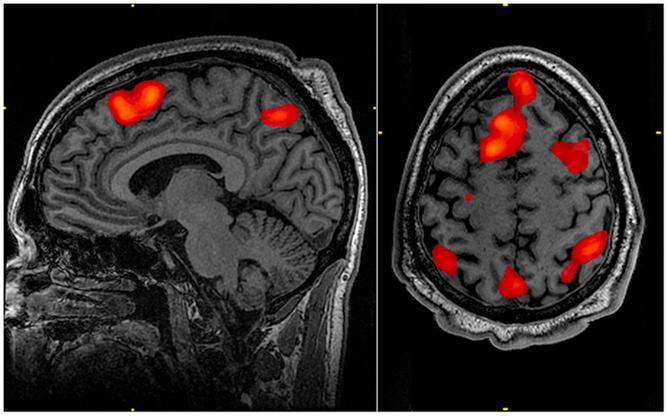 151026-brain scan fingerprint conv